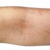 皮肤瘙痒应如何改善 皮肤瘙痒的治疗方法