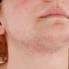 夏天皮肤过敏的原因有哪些