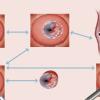女性宫颈炎饮食误区 宫颈炎患者不可以吃的食物