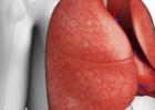 慢阻肺怎么预防 什么是慢阻肺