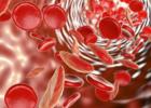 女性贫血的原因 如何预防女性贫血