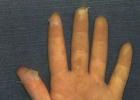 手掌为什么会脱皮 手掌脱皮原因
