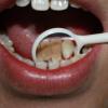 牙结石危害 口臭因它而起