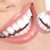 牙龈出血 口腔牙龈疾病该怎么治疗