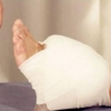 脚踝扭伤治疗方法 脚扭伤处理后怎么办