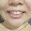 牙齿咬合不齐的原因是什么