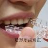牙齿矫正过程经历是什么