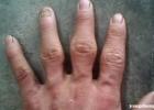 手上这部位变大心脏要出事 快看下你的手指